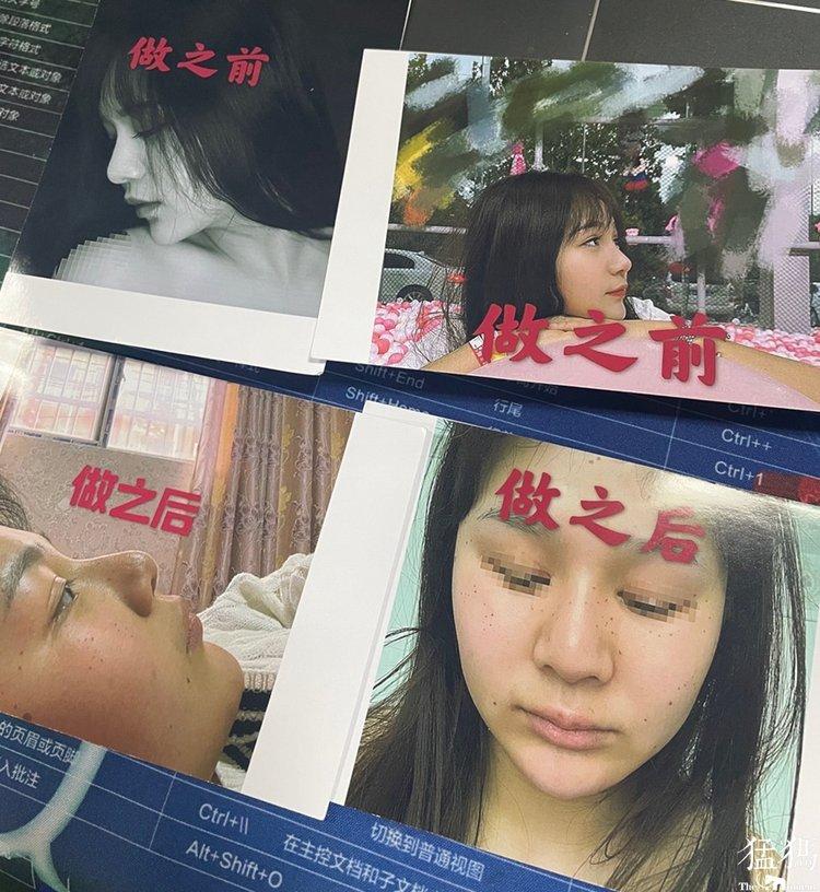 河南泰美丽整形:24岁女孩取耳软骨做鼻部整形,术后修复4次竟鼻尖发臭?