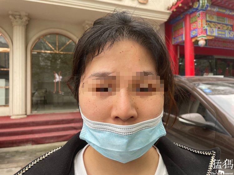 24岁女孩在河南泰美丽整形机构取耳软骨做鼻部整形 术后鼻尖散发阵阵臭味