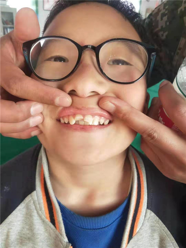 """固定树木的铁丝支架""""行凶"""",焦作11岁男孩儿两颗门牙被磕断"""